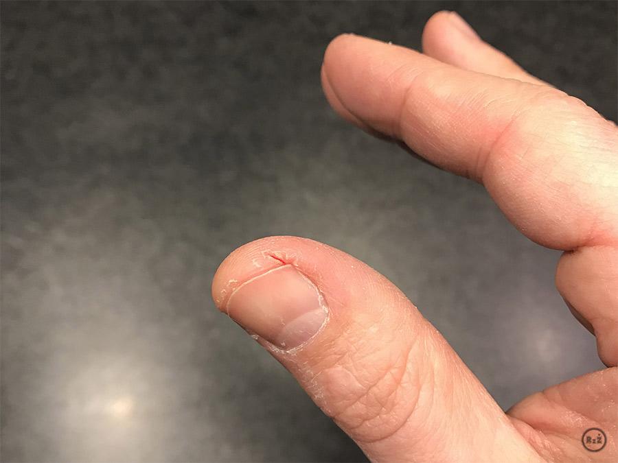 Prsty rukou s palcem v popředí s viditelnou kožní prasklinou   Rady ze života