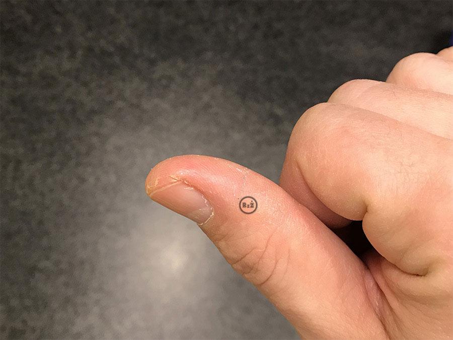 Fotografie palce s kožní prasklinou po 5 dnech používání náplasti (řešení praskliny v zánětu, když nic nepomáhá)   Kožní praskliny na prstech po 5 dnech   Rady ze života
