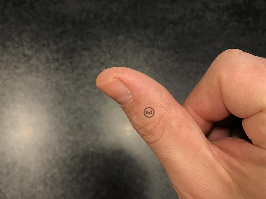 Fotografie palce po vyléčení kožní praskliny po 9 dnech | Kožní praskliny na prstech | Rady ze života