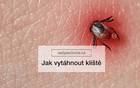 Klíště zapité do již zčervenalé kůže | radyzezivota.cz | zdroj: shutterstock.com