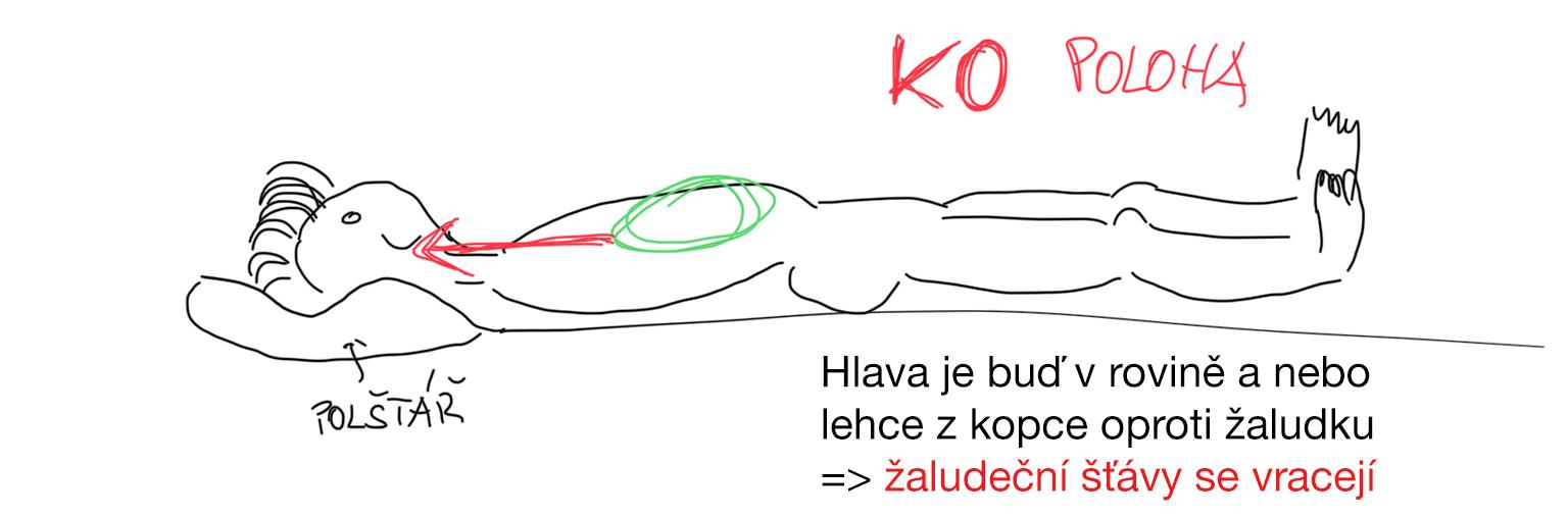 Špatná poloha při spánku - úroveň hlavy je pod úrovní žaludku - žaludeční šťávy mohou unikat do dutiny ústní | Paradentóza | Pálení žáhy | Bolest na hrudi | Bolest zad | Zjistil jsem příčinu